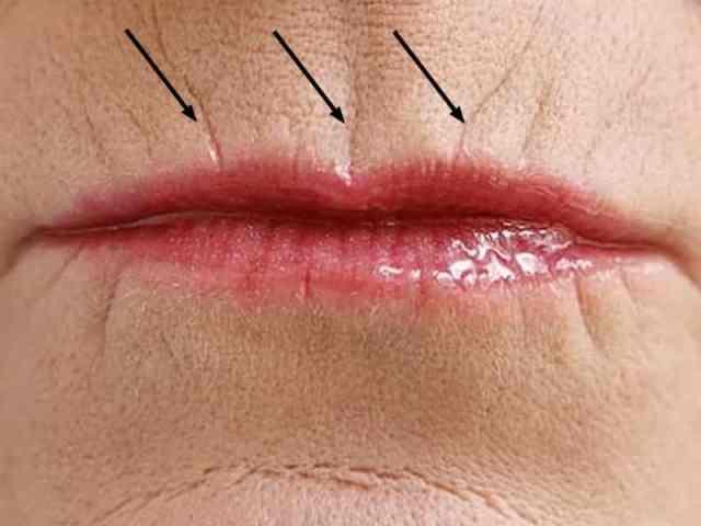 Невероятно! Этот способ помог избавиться от морщин над губой очень быстро!