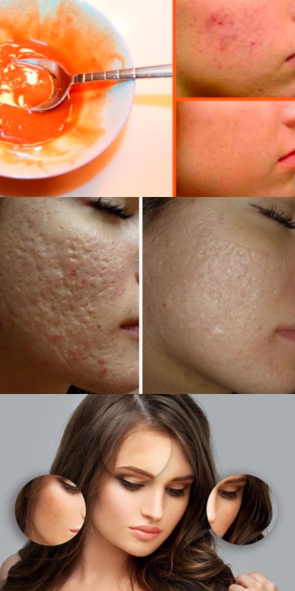 Удалите шрамы и пятна на лице с помощью этой маски