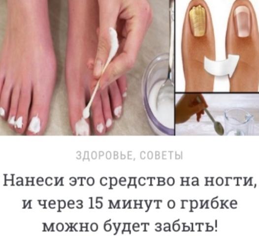 Нанеси это средство на ногти, и через 15 минут о грибке можно будет забыть!