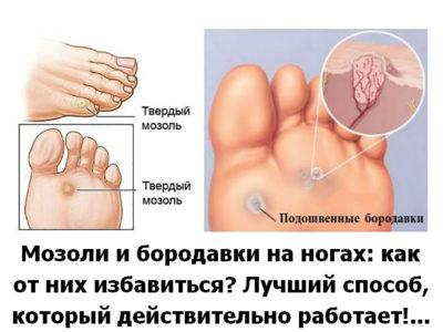 Как избавиться от мозоли и бородавки на ногах