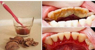 Как избавиться от зубного камня при помощи 1 простого средства.