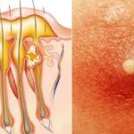 Как вылечить фурункулез навсегда — лечение фурункулов народными средствами