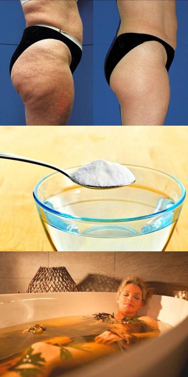 Косметологи умоляют «Даже не вздумайте тратиться на дорогие препараты против целлюлита! Используйте это средство раз в неделю…»