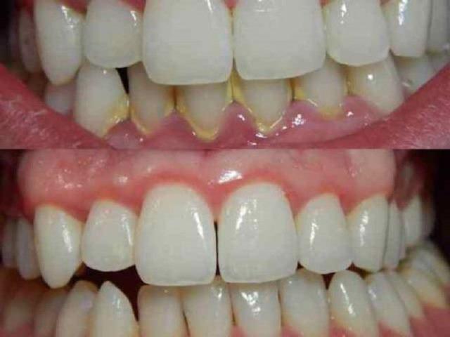 Удалите зубной налет с помощью этих 4 натуральных ингредиентов!