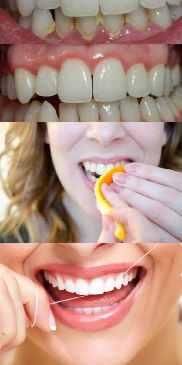 Удалите зубной налет с помощью этих 4 натуральных ингредиентов