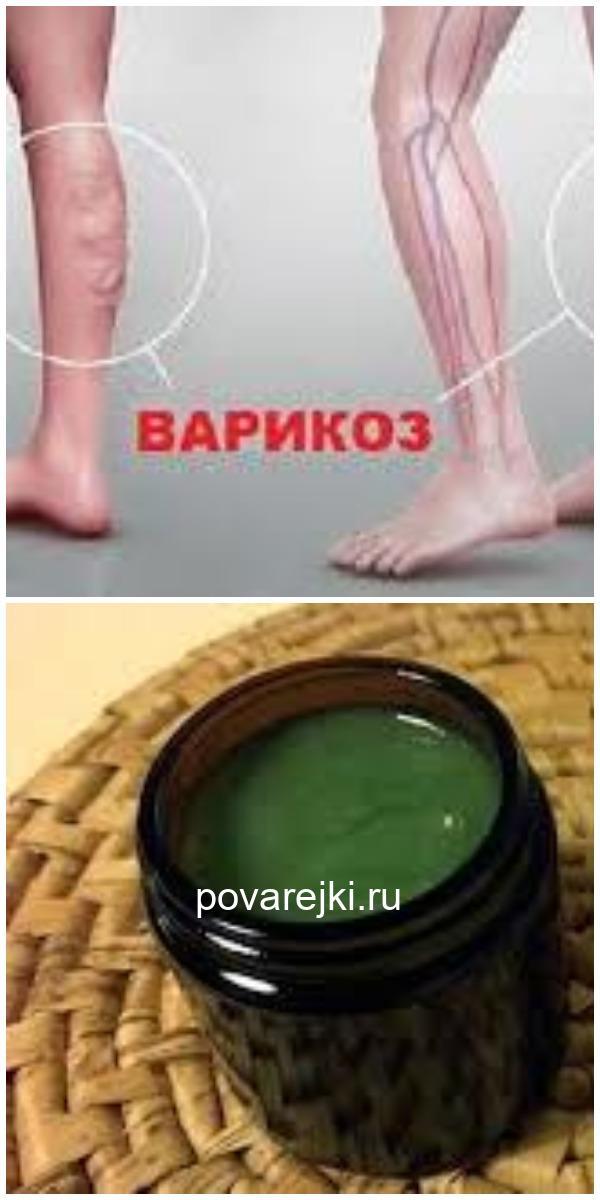 Врач-флеболог: «Запомните все! Варикоз не любит, когда ноги…»
