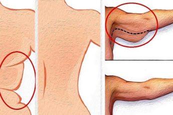 Морщинистая шея, дряблые руки и рыхлые бедра в прошлом! Это средство огорчит пластических хирургов.