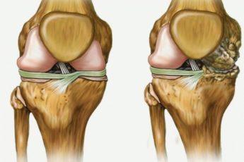 Лечит ваши колени, восстанавливает кости и суставы в кратчайшие сроки!