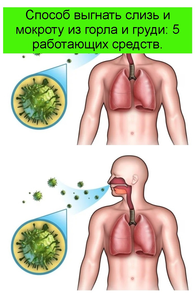 Способ выгнать слизь и мокроту из горла и груди: 5 работающих средств 4