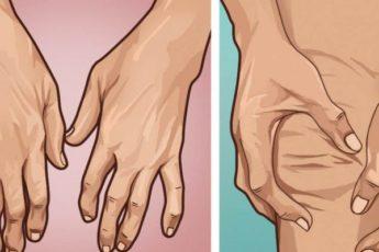 Три распространенных типа артрита: что нужно знать и как лечить 1