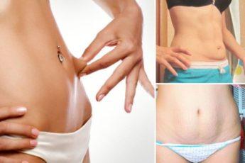 20 способов для подтягивания кожи после похудения 1